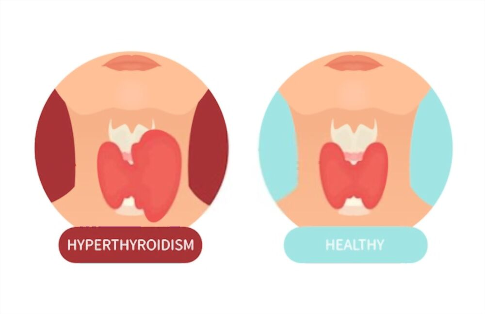 Treatments of hyperthyroidism